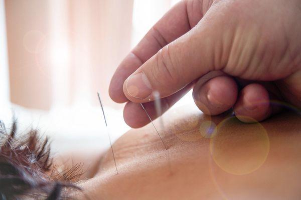 Секреты восточной медицины: как и что лечит иглоукалывание
