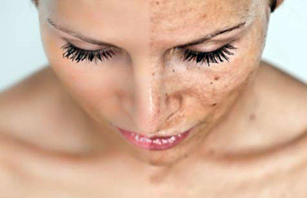 Активация метаболических процессов подкожно-жировой клетчатки;Устранение гиперпигментации, сосудистых звездочеки веснушек;Выравнивание тона кожи;