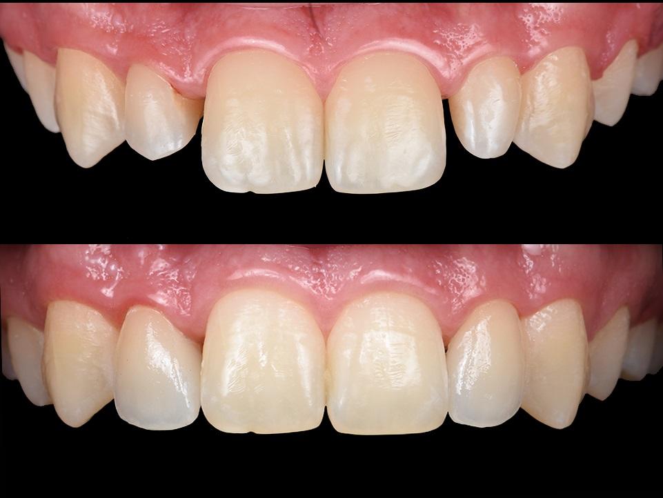 Пациента не устраивал размер боковых передних зубов; их непропорциональность.С помощью керамических реставраций создана гармония пропорций и формы зубов.