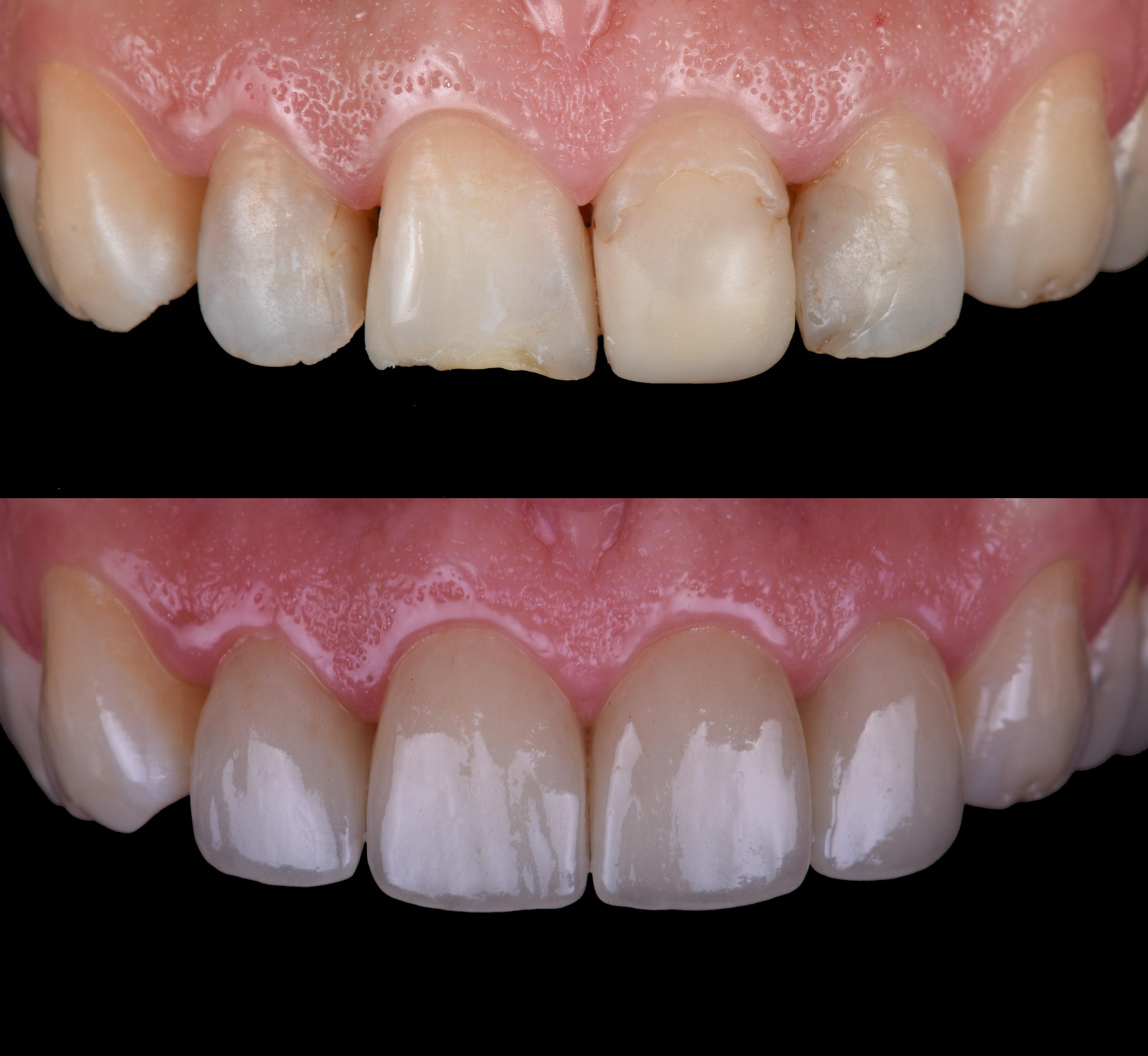 Пациента не устраивала форма, цвет и ассиметрия зубов. Старые композитные пломбы заменены на керамические раставрации.