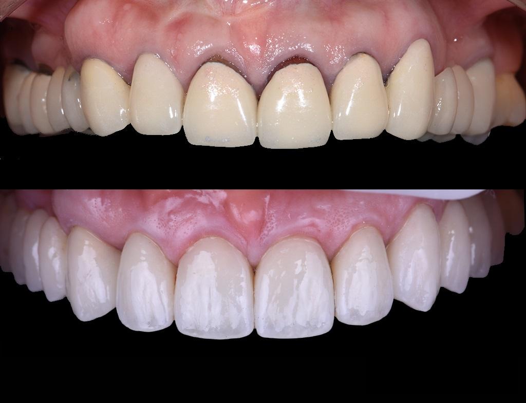 Пациент жаловался, что зубы выглядят не естественно, с желтизной, с темным ободком возле десен. Произведена замена старыхметалло-керамических конструкций на     безметалловые реставрации. весенних образов.
