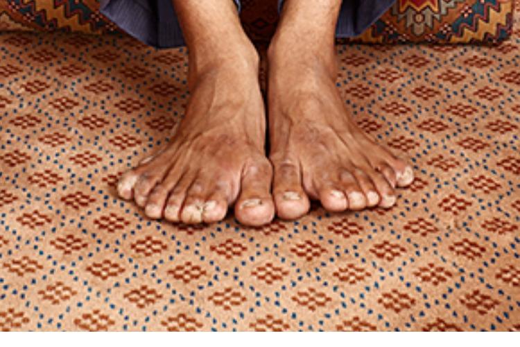Мужчина живет с 28-ю пальцами на руках и ногах. Видео