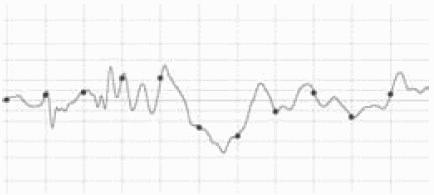 частота дискретизации звука
